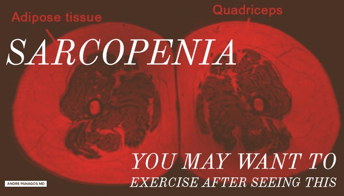 How to Prevent Muscle Wasting Known as Sarcopenia