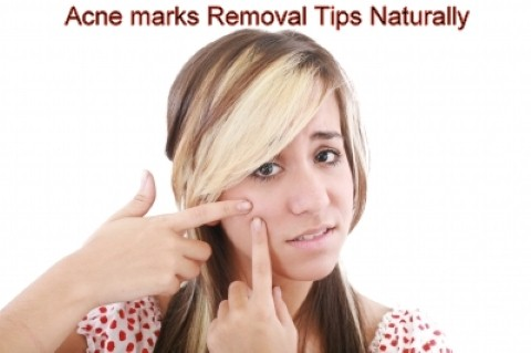 Acne marks Removal Tips Naturally