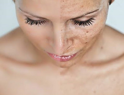 Hyperpigmentation for Face Home Remedy