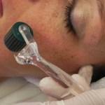 scar removal skin care