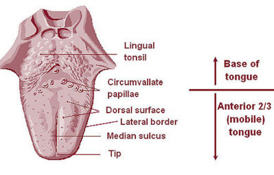Lingual Tonsils Tonsillitis And Pictures