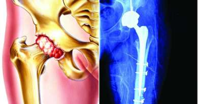 Here is how excessive vitamin A may increase risk of bone fractures