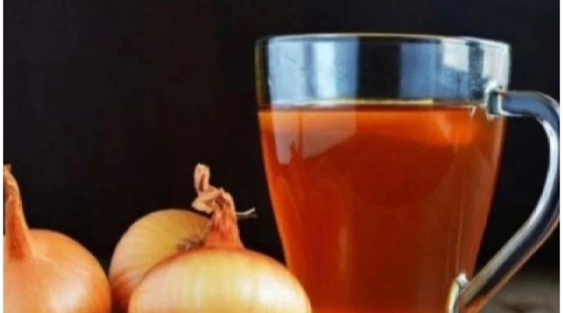 प्याज की चाय से खांसी, नजला, जुकाम का बेहतरीन इलाज, जानिए कैसे छिलके से भी बना सकते हैं ड्रिंक्स