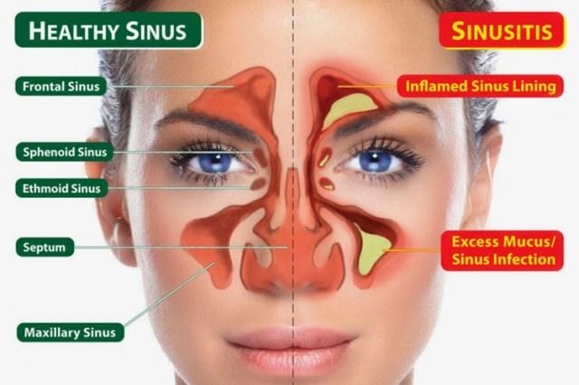 sinusitisandfibromyalgia