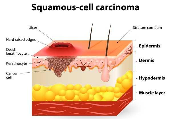 ce să donați cu varicoză