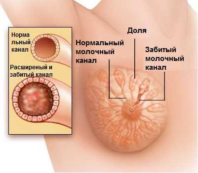 Покалывание в молочной железе причины