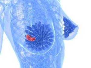 Можно ли спутать фиброаденому с жировой долькой. В молочной железе обнаружена жировая долька или фиброаденома
