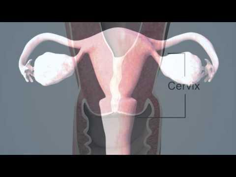Яичник ребра матки что значит. Яичники прижаты к ребру матки