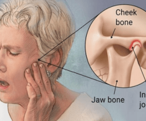 Does Fibromyalgia Cause Jaw Pain?