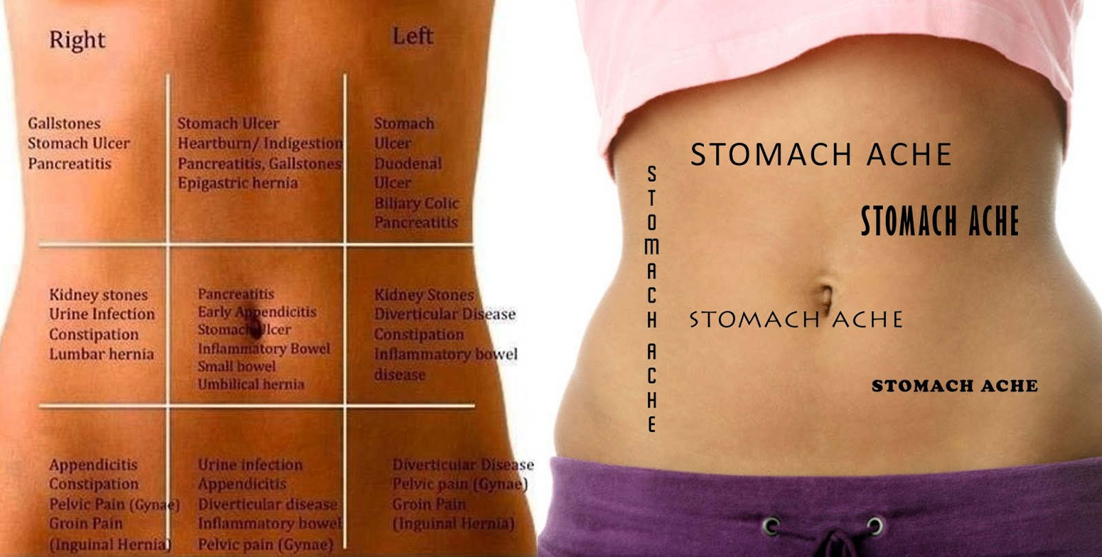 Left Side Pain Stomach Abdomen