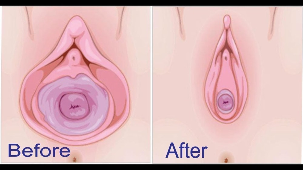A Solution To Remedy Their Loose Vagina There Are More Options Available Now Than There Has Ever Been And This Could Leave You Confused And Frustrated