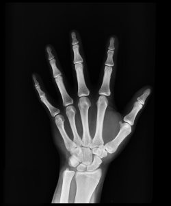 xray for orthopaedic appointment