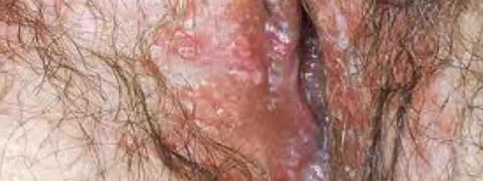 Yeast Infection On Women
