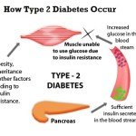 Types of Diabetes(type 1, Type 2 and Gestational)
