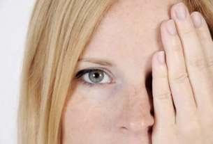5 Reasons Of Dark Spots On Your Face