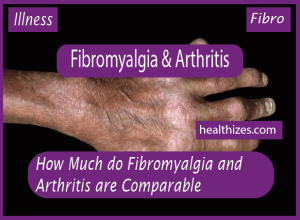 How Much do Fibromyalgia and Arthritis are Comparable?