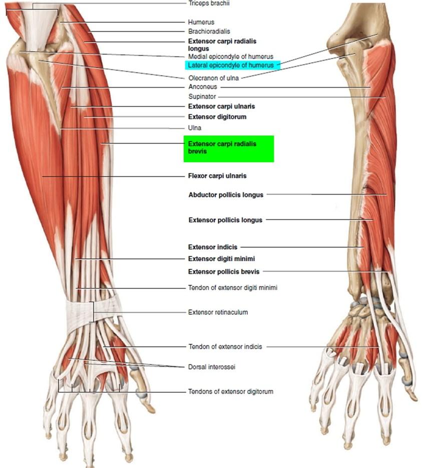 Tendonitis - Patellar, Peroneal, Knee, Foot, Wrist, Biceps ...