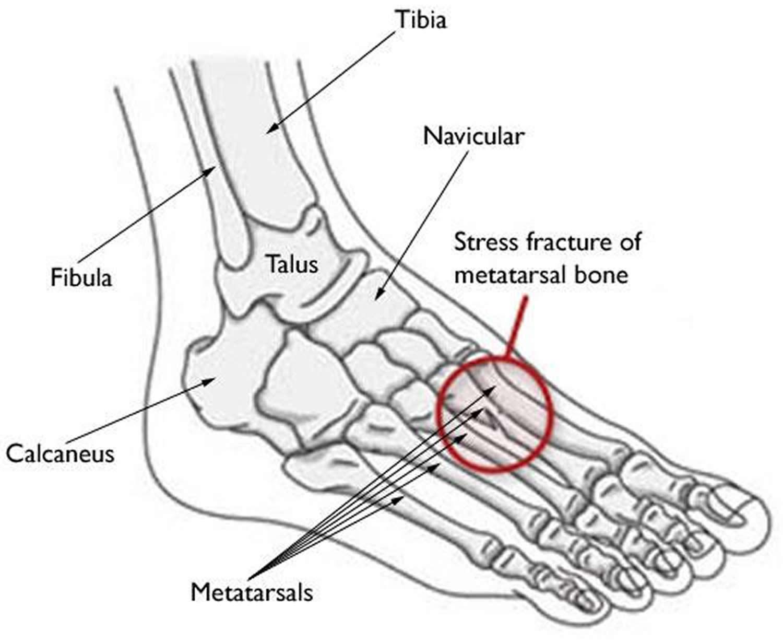 Fractured Ankle Bones Diagram