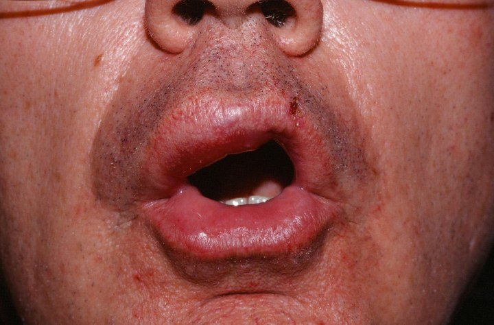 Chronic Hives Causes