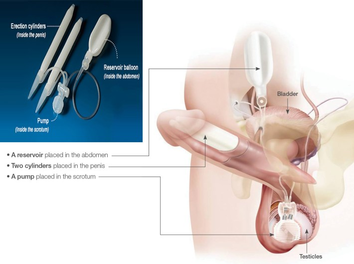 penile implant - penile prosthesis implant, surgery, complications
