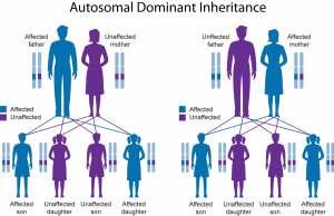 Waardenburg syndrome causes, types, symptoms, diagnosis
