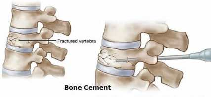 Bone cement, polymethylmethacrylate bone cement