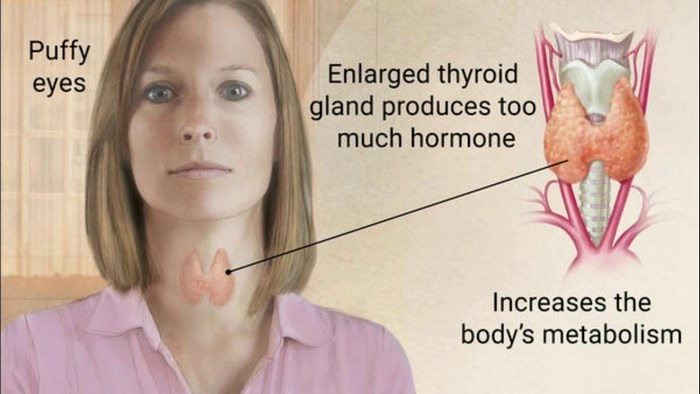 hyperthyroidism symptoms in women and enlarged thyroid gland