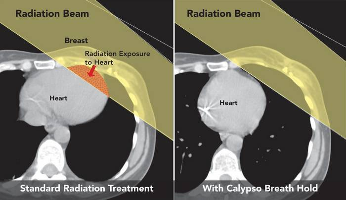 radiation therapy- breast cancer treatmet