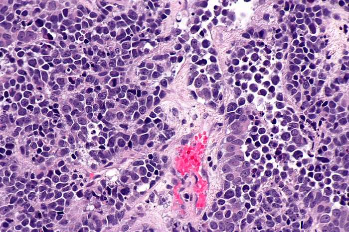 small cell carcinoma-types of cancer