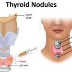 thyroid-nodules symptoms causes and treatment in males and females