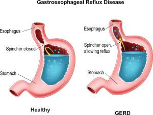 How To Fight Acid Reflux (Naturally) Without Having To Take Nexium | Health News Hub