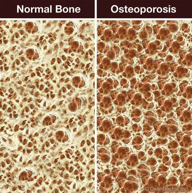 Comparison of a normal bone and Osteoporosis