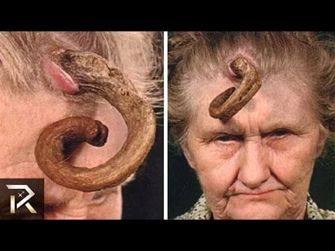 Watch Shocking Medical Conditions That You Won't Believe Exists