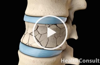 Back Surgery Vertebroplasty and Kyphoplasty