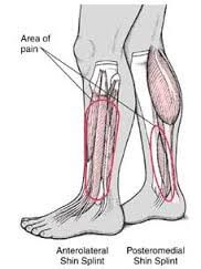 anterolateral shin splint