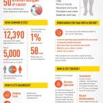 Shining a light on sarcoma [Infographic]