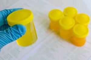 Tumore alla vescica - Diagnosi con esame urine