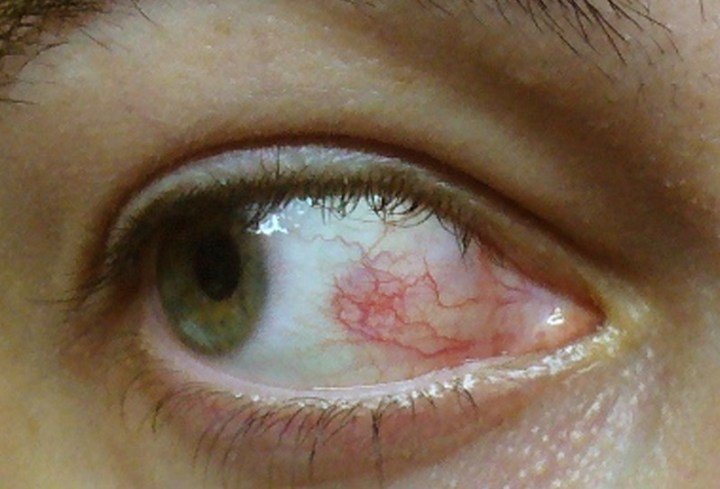 How Long Does It Take For Symptoms Of Ocular Herpes To Appear? 2