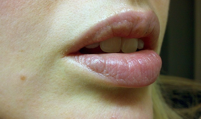 Blue Discoloration Lower Lip