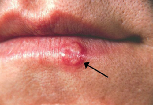 Herpes Blister On The Lower Lip