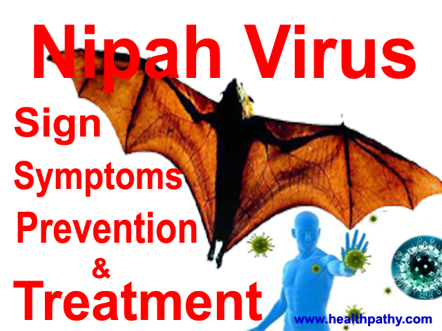 Nipah virus sign symptoms and treatment