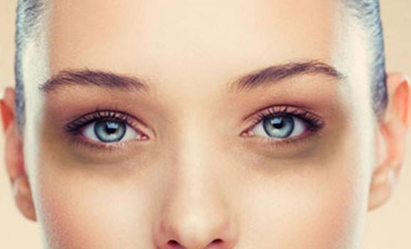How-to-get-rid-of-dark-circles-under-eyes-fast-overnight