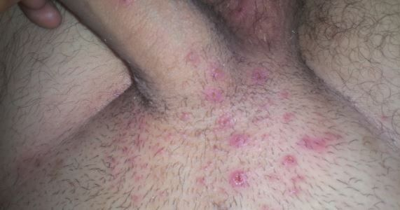 Spotty sore penis after sex