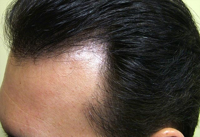 Androgenic alopecia (male and female pattern)