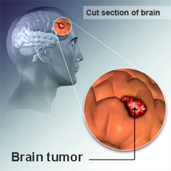 Cursed with Brain Cancer - Is There a Cure?