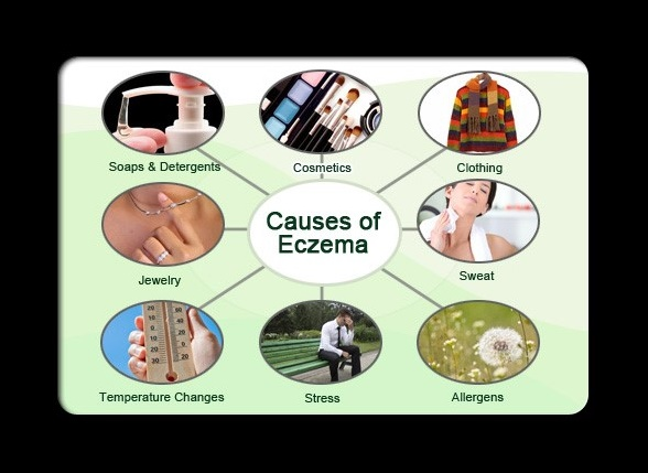 Environmental factors that cause eczema are