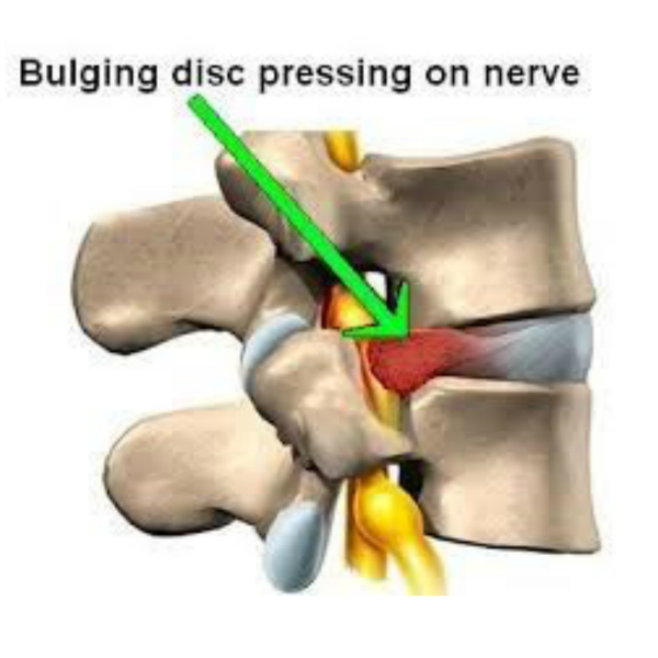 What are the symptoms of a herniated disc?
