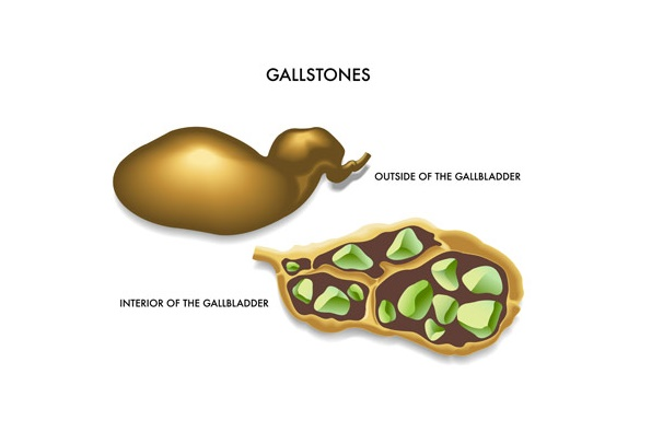 Why do gallstones form? Know the causes and the factors that increase the risk of gallstones