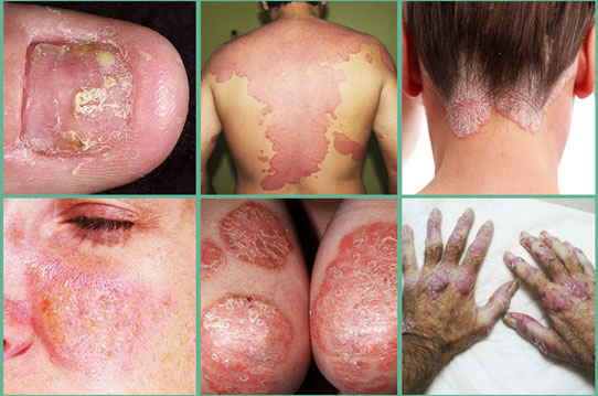Types of Psoriasis and how it occurs