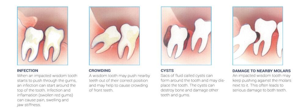 Pencabutan Gigi Geraham Bungsu- Global Estetik Dental Care